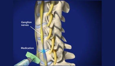 symphathetic-nerve-block