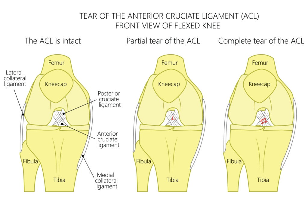 ACl -01