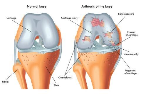 arthritis 2 -01