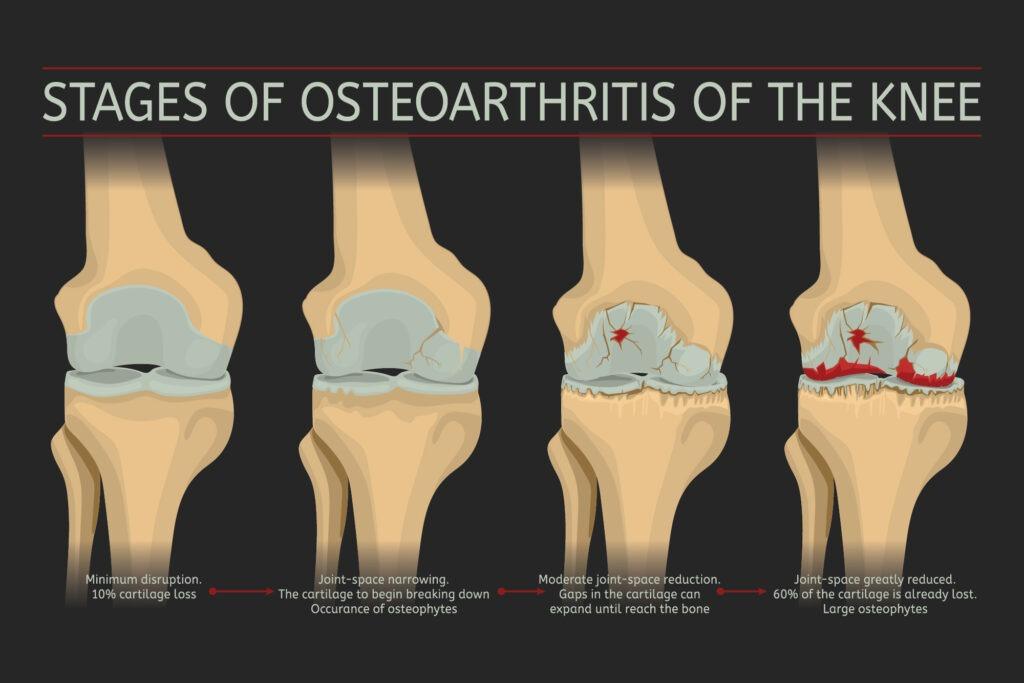 arthritis 3 -01