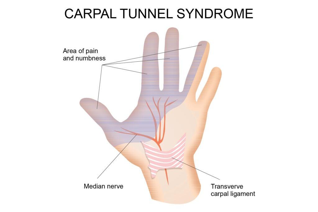 carpal tunnel 1 -01