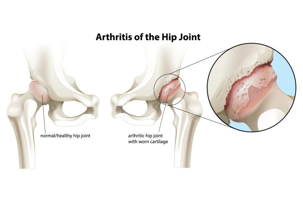 hip aethritis 2 -01