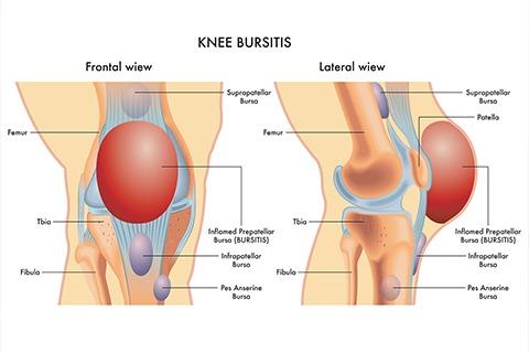knee bursitis 2