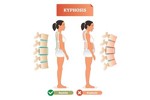 kyphosis-2