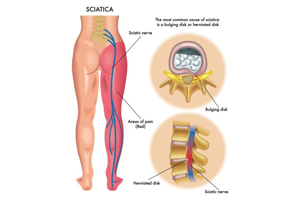 sciatica 2-01