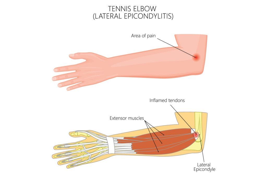 tennis elbow 1 -01