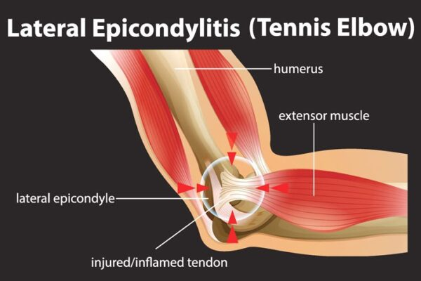 ALL YOU NEED TO KNOW ABOUT TENNIS ELBOW/LATERAL EPICONDYLITIS